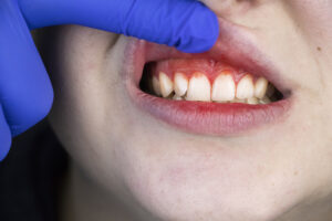 Three Reasons You Might Be Dealing with Bleeding Gums
