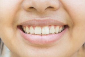 Are Yellowing Teeth a Sign of Bad Oral Health or Just Discoloration?