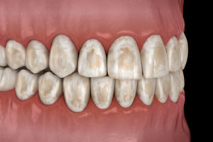 Clearing Up the Confusion: Can Tooth Enamel Be Saved or Repaired?