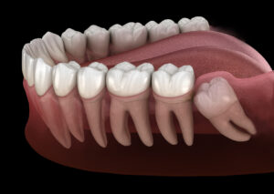 The Facts About Wisdom Teeth: Do You Really Need to Get Them Removed?