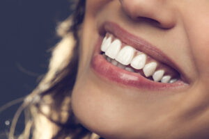 Teeth Whitening: Are You Getting Real Results or Just Covering Up a Bigger Problem?