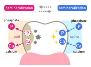 Your Teeth Could Be Being Eaten Away by Acid Erosion without You Know It