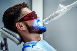 Essential Factors to Know Before You Decide to Move Forward with Teeth Whitening