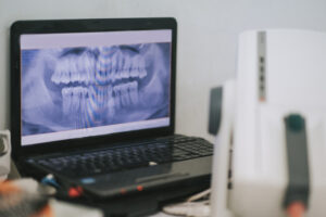 All the Answers You Need to Your Questions About Dental X-Rays