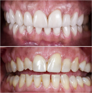 Are You Considering Porcelain Veneers? Learn What You Should Know Before You Decide