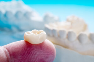 Dental Crowns Shouldn't Fall Out: Learn Why Yours Might