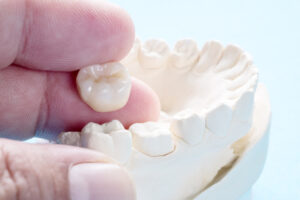 We Have the Technology to Create Same-Day Crowns for Our Patients