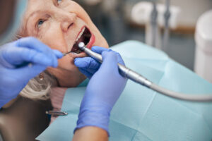 When is the Last Time Your Senior Citizen Friends and Relatives Visited the Dentist?